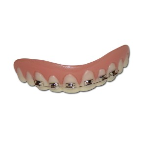 Billy-Bob Teeth - Braces - White / One Size